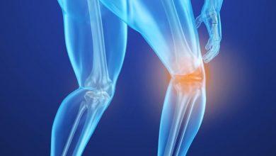 تصویر از تنها راه مقابله با بیماری خاموش پوکی استخوان، داشتن سبک زندگی سالم است